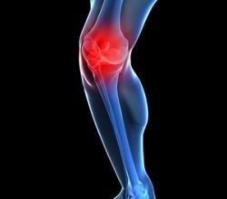 lesión en las rodillas disminuye al correr descalzos