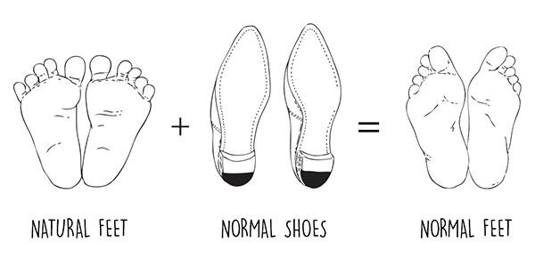 calzado moderno deforma al pie